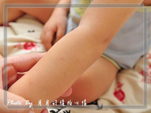 試用-eggshell Verda 小鹿山丘天然有機精油防蚊液 @民宿女王芽月-美食.旅遊.全台趴趴走